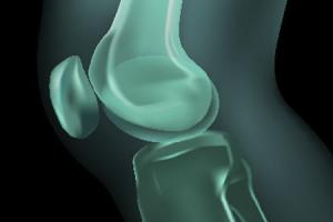 Osteoartitras