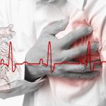 Širdies ritmo sutrikimas